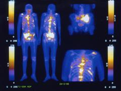 Image result for medical tracers