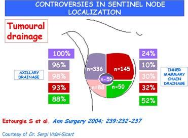 Human health campus sentinel lymph node investigations sentinel lymph node investigations ccuart Gallery